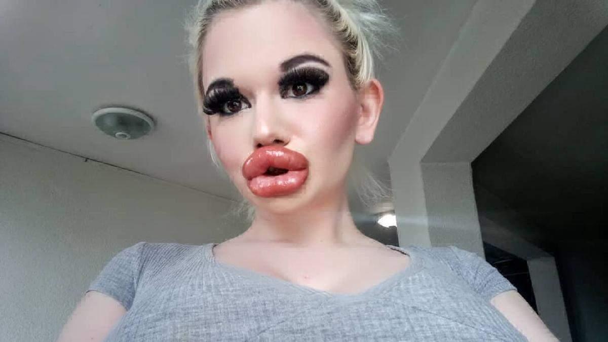 Девушка с самыми большими губами
