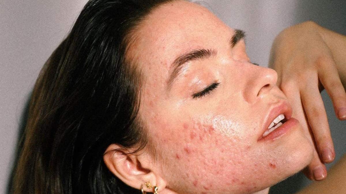 Чому з'являється акне на обличчі: генетика, гормони та інші причини