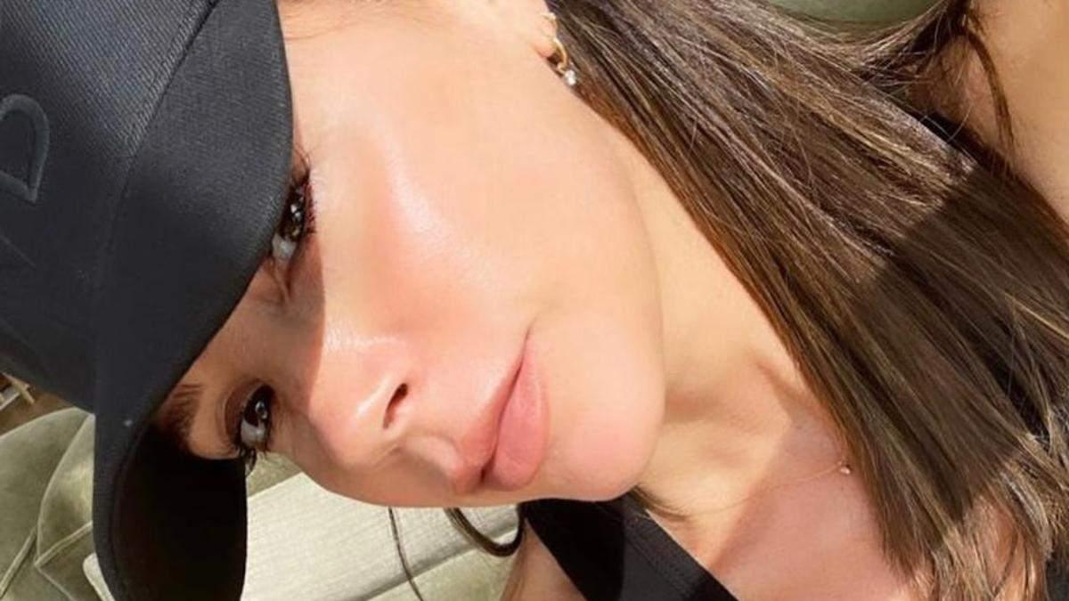 Яка процедура допомагає Вікторії Бекхем зберігати молодість шкіри