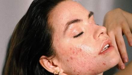 Акне на обличчі: генетика, гормони та інші причини появи захворювання